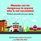 681 Measles Cases In 22 States Breaks Record