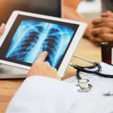 See Inside Your Lung Cancer Risk