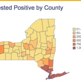 COVID-19: New York State Launches Statewide Tracker Website