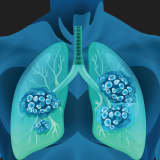 Lung Cancer: The Ultimate Women's Health Issue