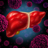 A Worrisome Trend: More Cases Of Liver Cancer