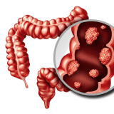 Colorectal Cancer: A Preventable Cancer Affecting Young Patients