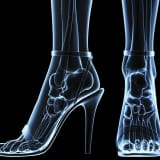 Well Heeled: Love Your Feet And Avoid Pain This Winter