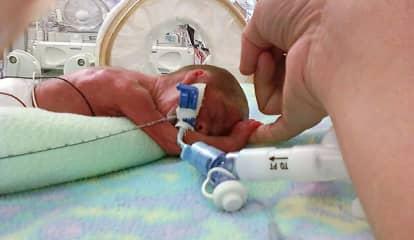 Pregnancy, COVID And Prematurity: Much Still Unknown