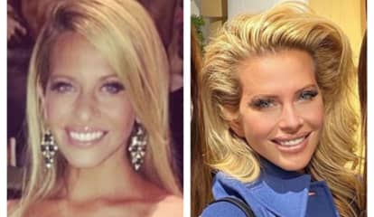 Botox, Nose Job, Lash Extensions: RHONJ Alum Dina Manzo Talks Drastic New Look
