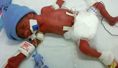 COVID-Positive Moms Have Increased Risk of Premature Birth According To New Study