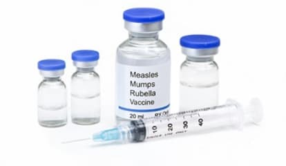 Five Children Diagnosed With Measles In Orange County