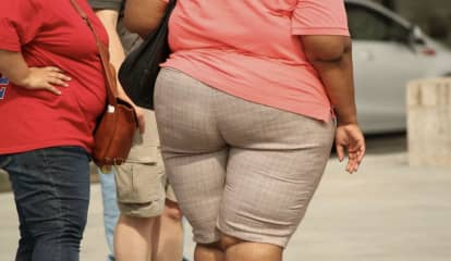 Bigger, Not Better: US Obesity Rate Expected To Skyrocket Into 2030
