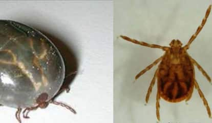 Bergen County Child First Person In U.S. To Carry Exotic Longhorned Tick