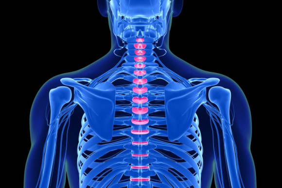 That back pain might be due to a 'pain in the neck'