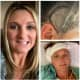 NJ Mom Faces Long Road To Recovery After Brain Tumor Removal
