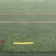 In the past, there have been patchwork attempts to fix the field in Eastchester.