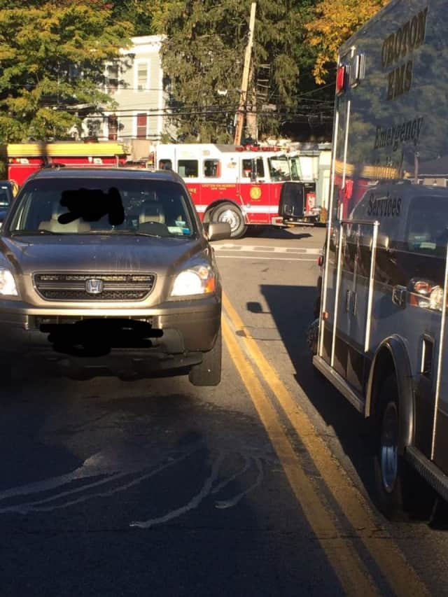 A pedestrian was injured when they were hit by a car on Friday in Croton-on-Hudson.