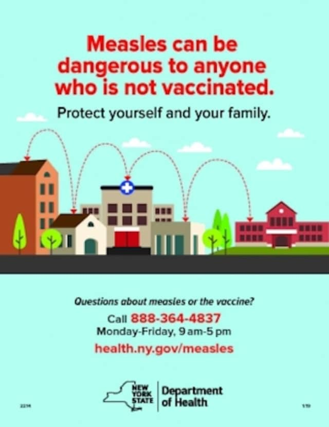 Rockland County reported Friday that there has been 157 cases of measles since the outbreak began last year.