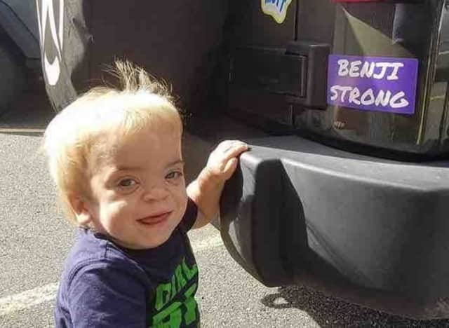 Benjamin Cullere of New Milford has been diagnosed with a rare genetic disease.
