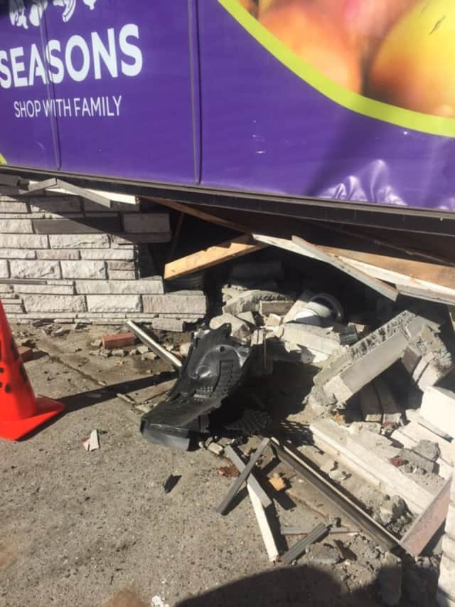 A 58-year-old woman accidentally drove into the side of a supermarket at the Golden Horseshoe Shopping Center near the Scarsdale-New Rochelle town line.