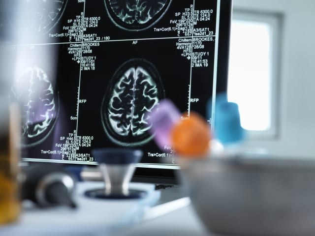 If you're suffering from seizures, it's important to visit a neurologist.