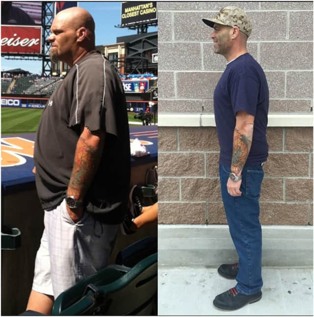 Richard Kunz before and after.