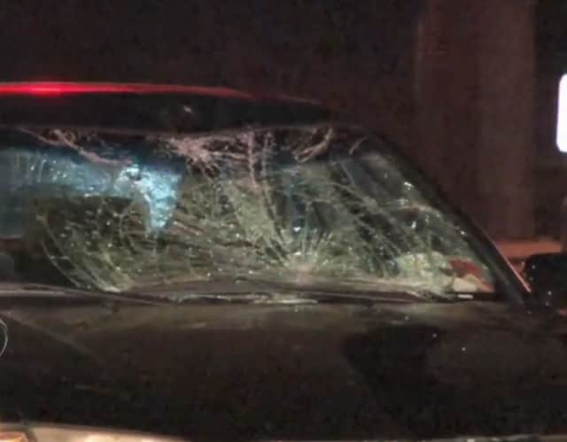 A pedestrian was critically injured Sunday night in Rye after being struck by two vehicles on Purchase Street.