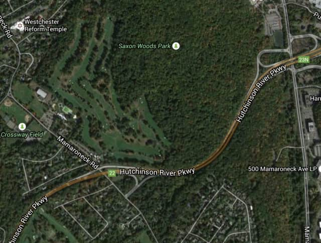 The accident occurred around 7:35 a.m. Monday just north of Mamaroneck Road in Scarsdale.