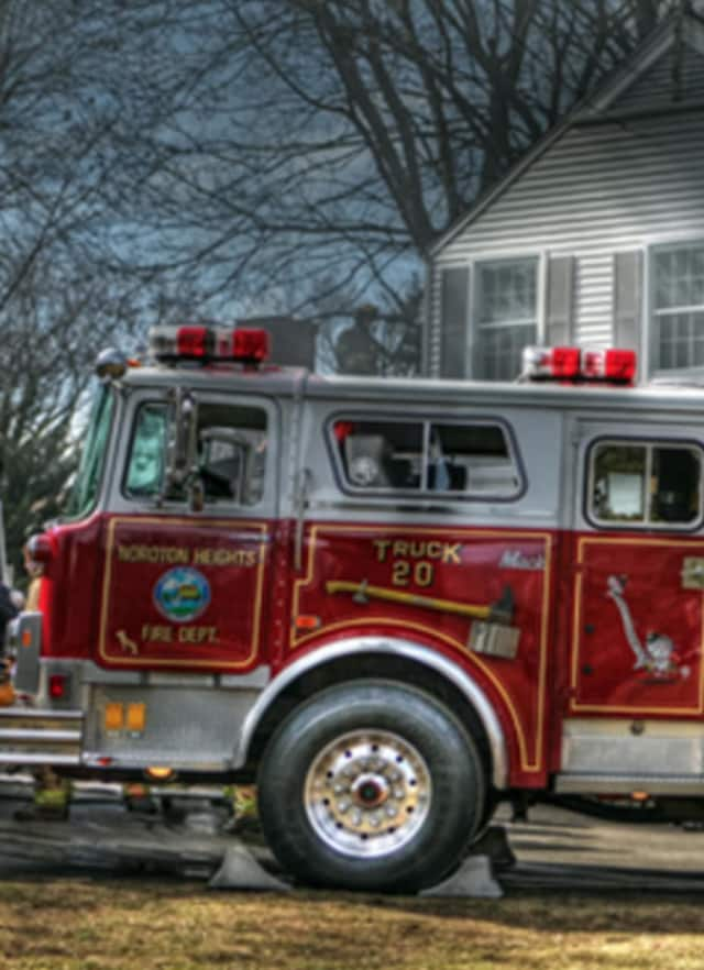 A Darien man was injured while trying to put out a fire outside his home.
