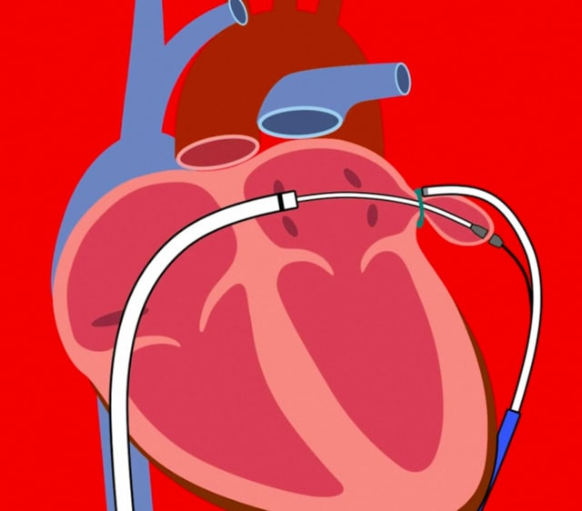 Valley Hospital is one of only 15 healthcare providers across the country to enroll in an new study evaluating AFib.