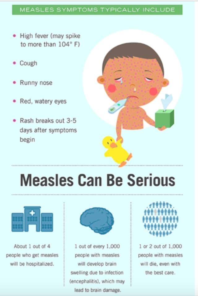 A look at measles symptoms.