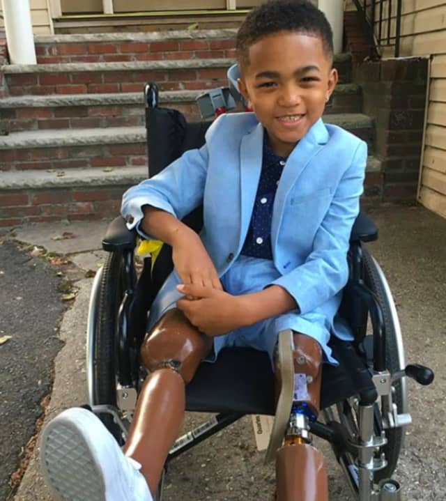 Kayden Kinckle, 6 of Englewood, is a double leg amputee and requires a bus with a wheelchair lift to take him to school. The bus company told his family that there is no bus for him this year.