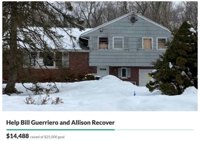 Support is surging for a Morris County father and his daughter who was hospitalized with burns after a devastating house fire.