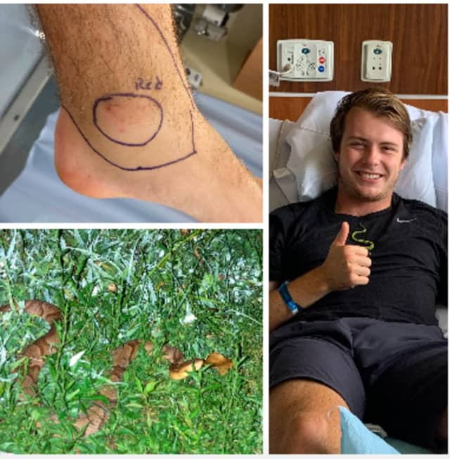Kevin Murray of Pennington recovers after being bit by a copperhead snake on a hike.