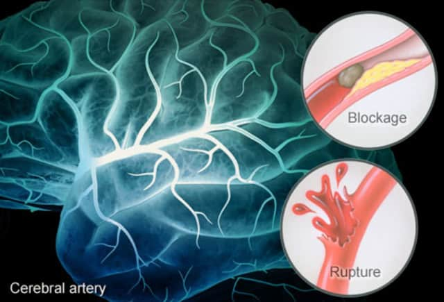 Strokes occur when an artery in the brain is blocked or ruptured. In order to reduce the chance of permanent side effects, it's important to immediately seek help.