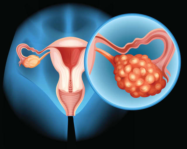 Ovarian cancer, which often goes unnoticed, is deadly. However, early detection increases the likelihood of survival.