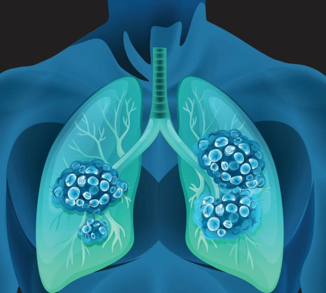Lung cancer is the most deadly form of the disease among women in the United States today. NewYork-Presbyterian is working to help women from diagnosis to survivorship.