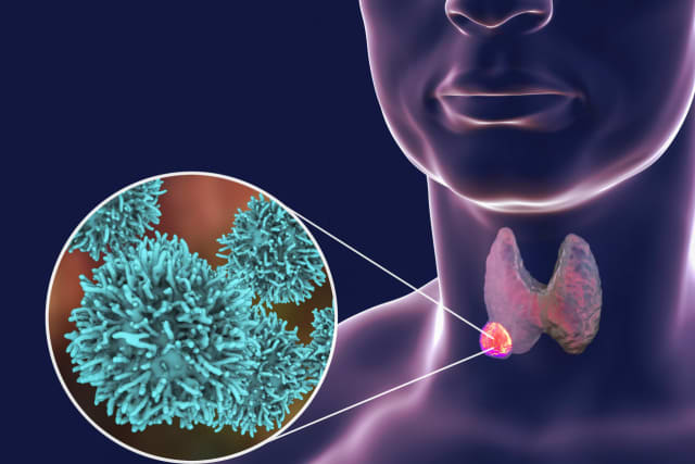 Thyroid cancer has grown in occurrence, but can be easily treated in most instances.
