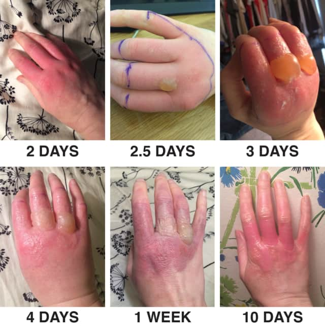 This is another case of phytophotodermatitis from exposure to lime juice.