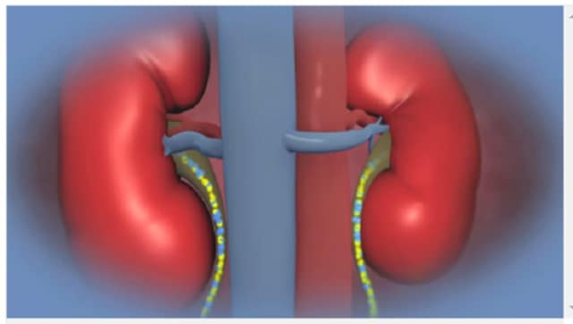 Researchers are encouraged by success they've seen in patients who received kidneys from incompatiable donors.
