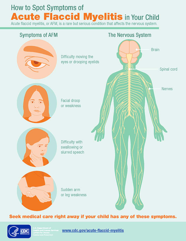 A look at symptoms of AFM.