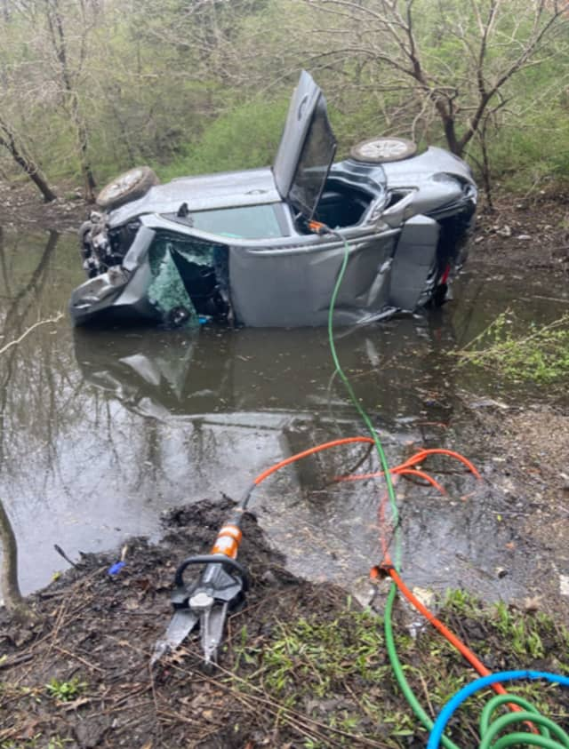 A 52-year-old Long Island man suffered fractures to both legs and hypothermia after crashing into a pond.