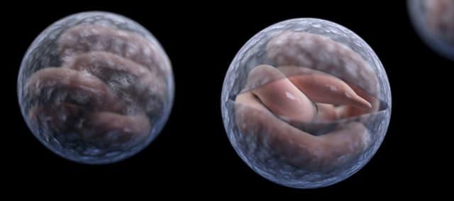 "Cryptosporidium is a microscopic parasite that causes the diarrheal disease cryptosporidiosis. Both the parasite and the disease are commonly known as ""Crypto."""