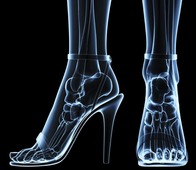 High heeled shoes can wreak havoc on feet, especially in slippery winter conditions.