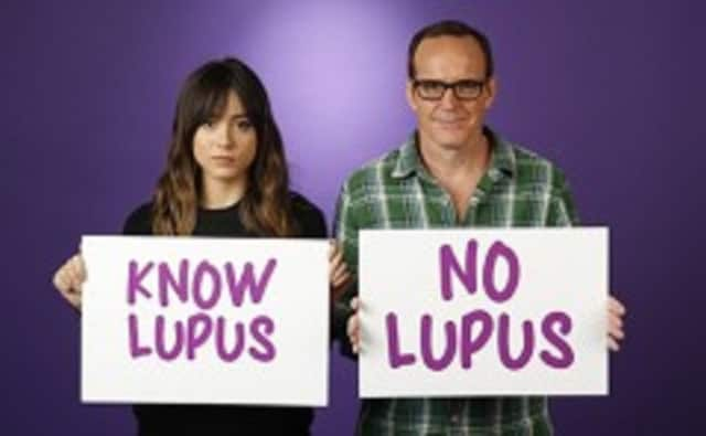 The Lupus Foundation of America will hold a Walk to End Lupus on Sunday in Trumbull.