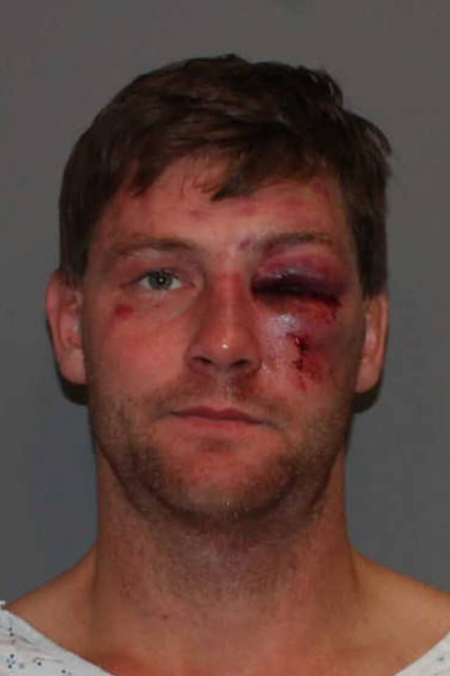Christian Garnett, 32, was charged with assault on a police officer and driving under the influence Thursday morning by Norwalk Police.