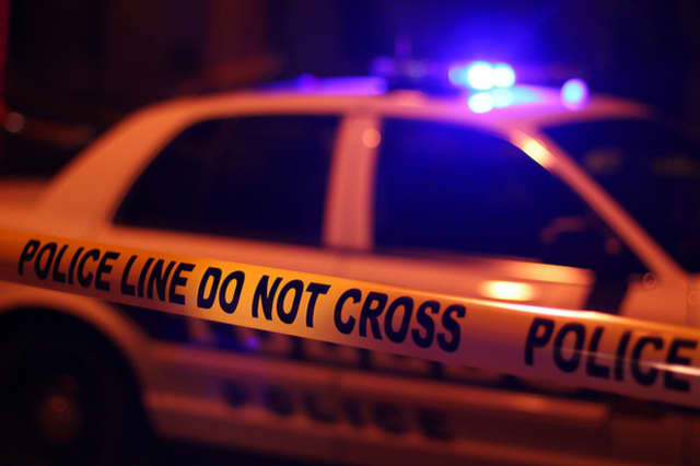 Yonkers police are investigating a Saturday night shooting that left a man with a gunshot wound in his stomach.