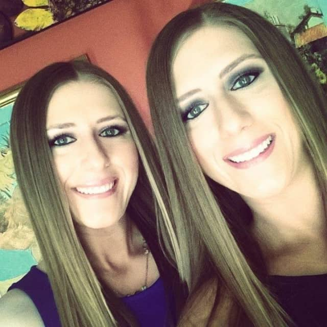 JoAnna Sciarrinno, left, and her twin sister, Jennifer, own DermaGlow Spa.