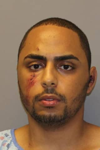 Suspect Admits To Attempted Murder After Abducting Girlfriend In Westchester