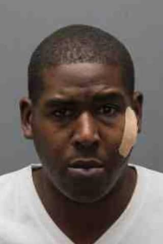 Bite To The Face May Lead To Life In Prison For Westchester Armed Robber